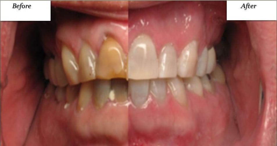 Zoom Whitening Westerville Oh Dentist Northstar Family Dental