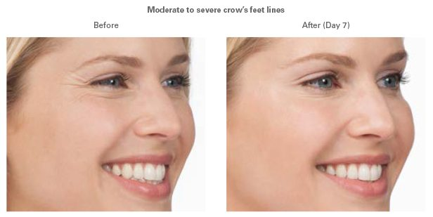 Is Botox, Juvederm or Radiesse right for you?